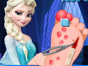 Frozen Foot surgery Game
